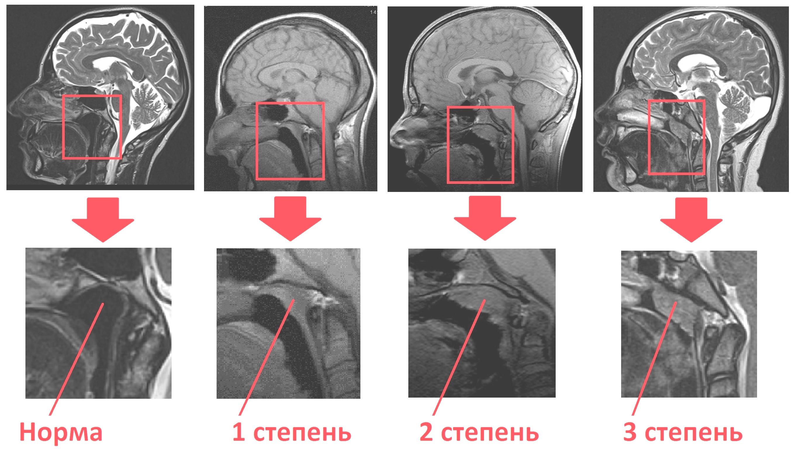 УЗИ вилочковой железы тимуса норма у детей