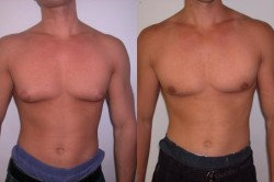 До и после операции при гинекомастии