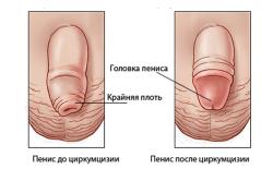 Мурманск увеличение члена