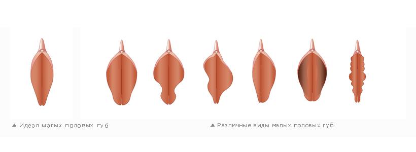 Форма половых губ фотографии фото 790-942