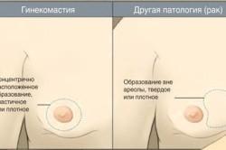 Отичия истинной гинекомастии