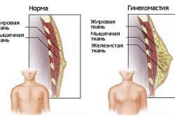 Отличия гинекомастии от нормы