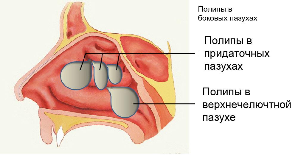 методы избавления паразитов в организме