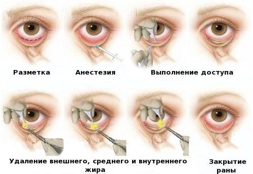 изменение формы глаз пластика фото