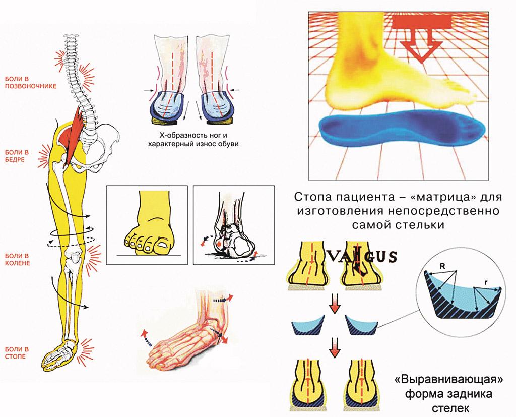 Продольное и поперечное плоскостопие: симптомы и лечение 33