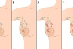 Стадии фиброаденомы молочной железы