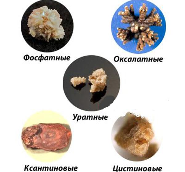Разновидности камней в почках фото