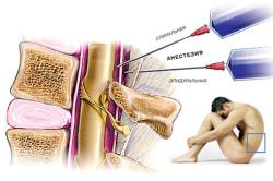 Техника проведения спинномозговой анестезии