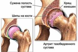Схема артрита тазобедренного сустава