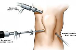 Процедура артроскопии коленного сустава
