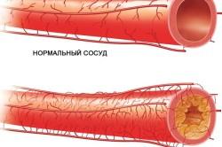 Атеросклероз - показание к шунтированию