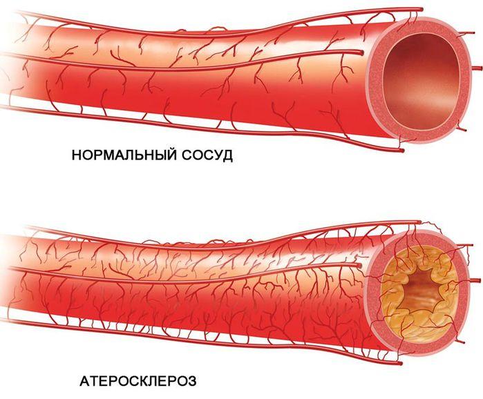 Бубновский атеросклероз сосудов головного мозга видео
