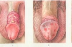 Фимоз - причины, симптомы, диагностика и лечение