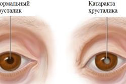 Катаракта хрусталика глаза
