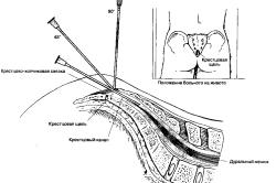 Схема применения сакральной анестезии