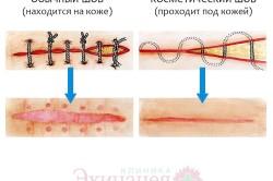 Виды швов после операции