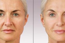 Пластическая операция: до и после