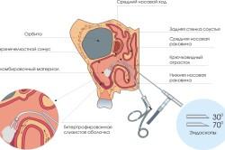 Принцип эндоскопической операции по удалению кисты