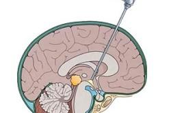 Эндоскопия головного мозга