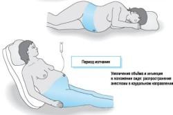 Эпидуральная анестезия при кесаревом сечении