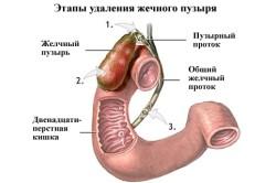 Эндоскопия желчного пузыря