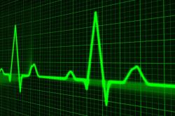 Необходимость кардиограммы перед проведением операции