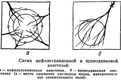 Схема инфильтрационной и проводниковой анестезии