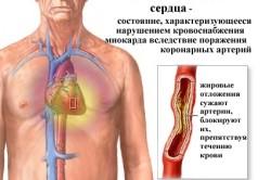 ИБС - показание к операции на сердце