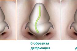 Виды искривления носовой перегородки