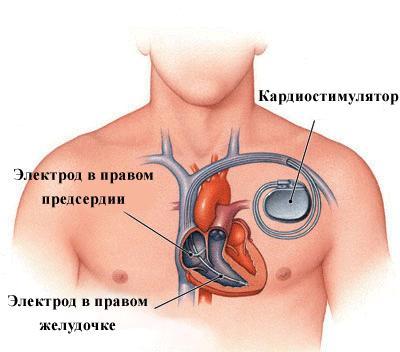 кардиостимуляторов можно