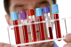 Лабораторный анализ крови для диагностики водянки яичек