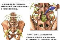 Ламинэктомия позвоночника