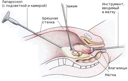 Делают лапароскопию беременным
