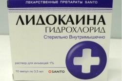 Лидокаин - один из препаратов для анестезии