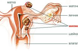 Миома матки - причина проведения полостной операции у женщин