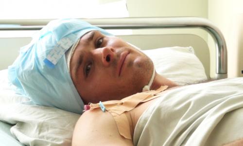 Операция на мозг человека