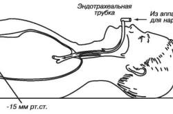 Дыхание больного через эндотрахеальную трубку