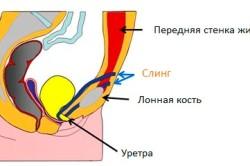 Схема установка слинга