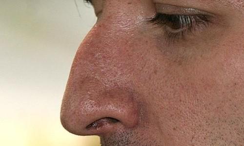 Проблема горбинки на носу