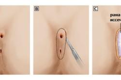 Принцип операции по удалению кисты