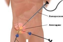 Лапарокопичекая аппендэктомия