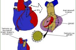 Схема радикальной операции при двойном отхождении магистральных артерий от правого желудочка