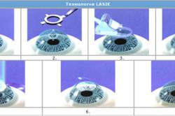 Технология операции по коррекции зрения ЛАСИК
