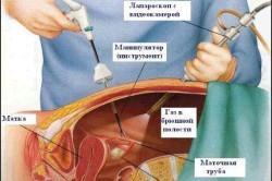 Схема лапароскопической операции