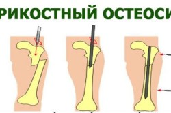Внутрикостный остеосинтез ключицы