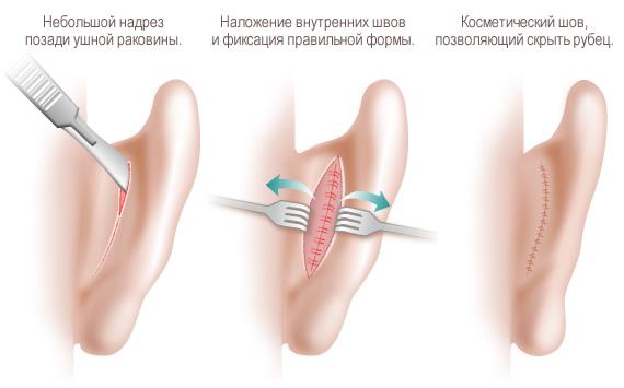 при которой ушные раковины