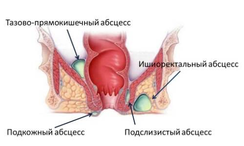 Проблема парапроктита после операции