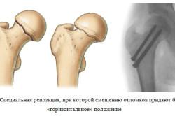 Перелом шейки бедра операция