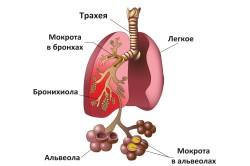 Пневмония - распространенное осложнение после операции Крайля