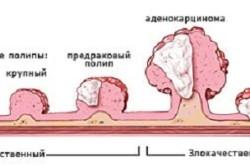 Стадии развития полипов матки